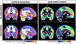 Does This Look Like A Normal (Negative) MRI Result?-2016_07_21_15_21_46_372_2016_07_22_mri_brain_concussion-jpg